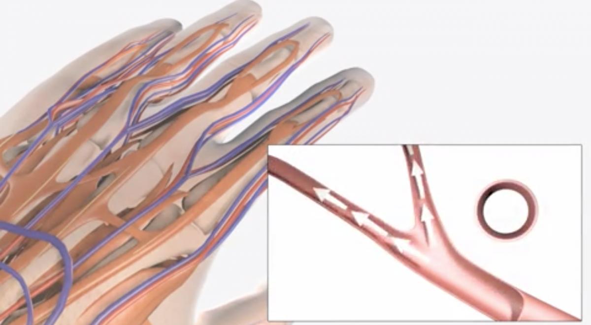 Hand Arm Vibration image iHASCO